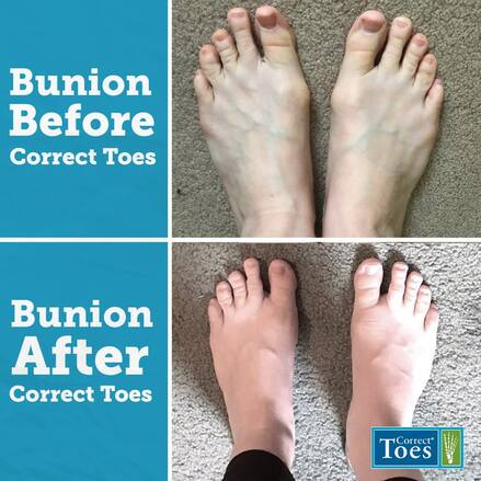 Fix Bunions Naturally With Correct Toes